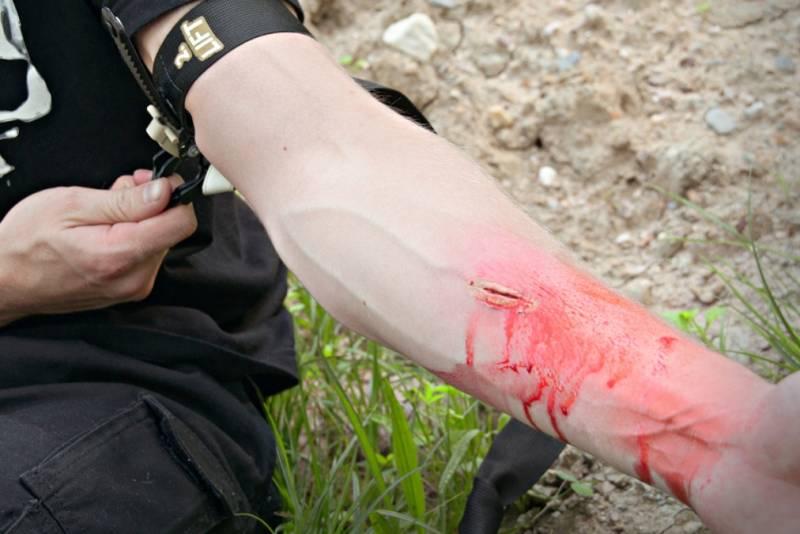 Krvácení
